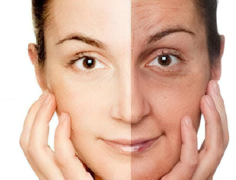 типи старіння шкіри обличчя і їх характеристика