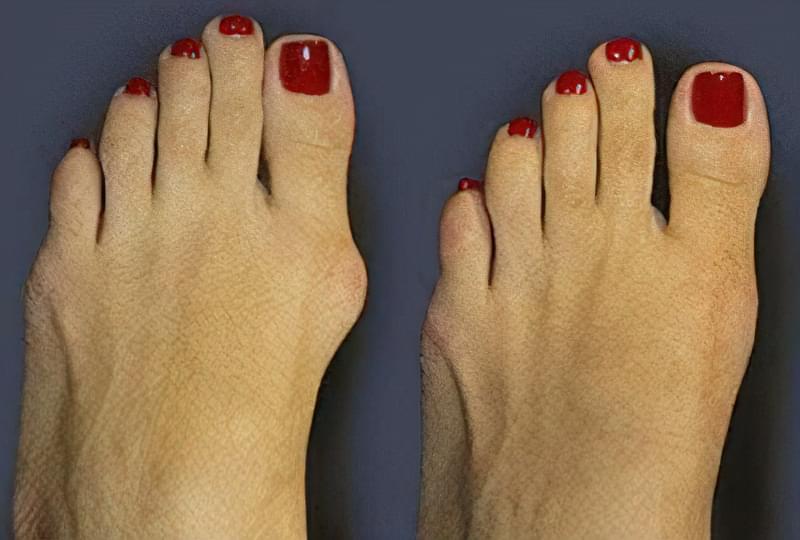 як позбутися шишок на пальцях ніг