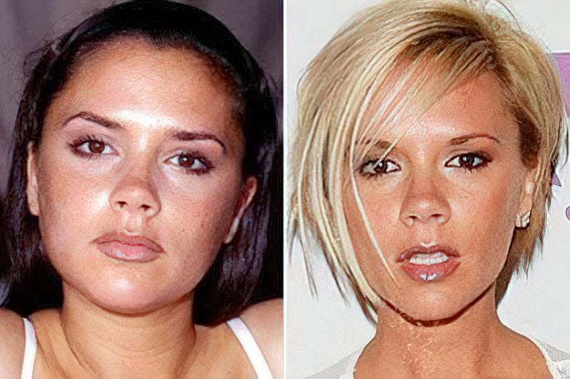 до і після корекції обличчя філлерами