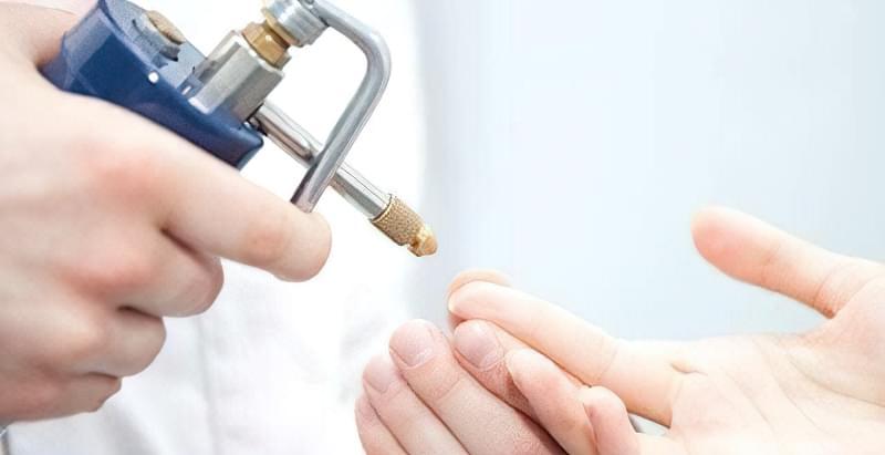 видалити бородавку азотом