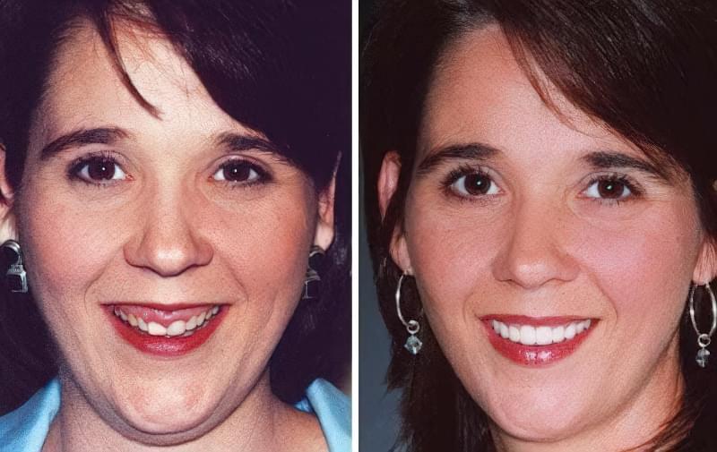 Фото до і після хірургічної корекції