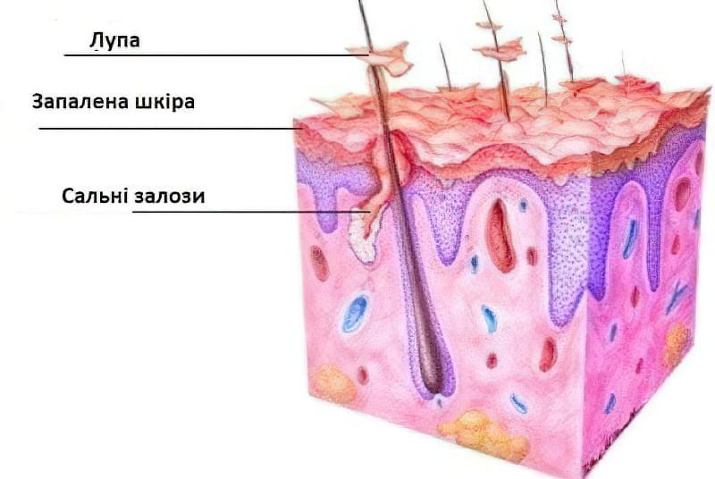 Як утворюються лусочки на шкірі голови