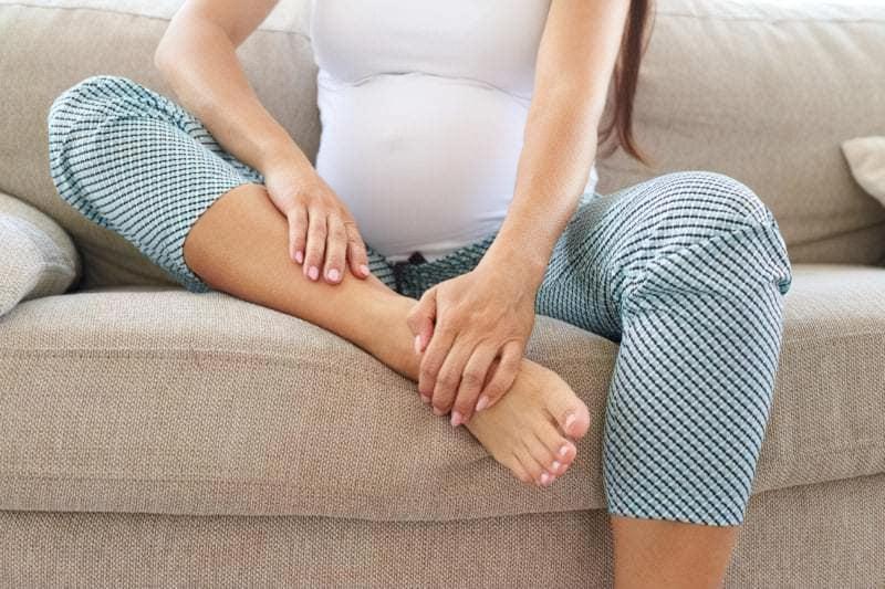 Варикоз вагітних