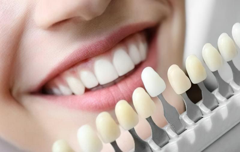 Zubni implanty