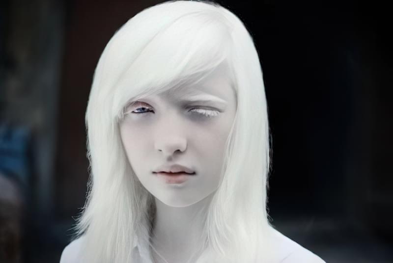 Дівчинка альбінос з дуже світлою шкірою