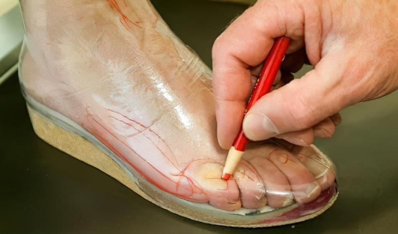 Зняття мірок для виготовлення ортопедичного взуття