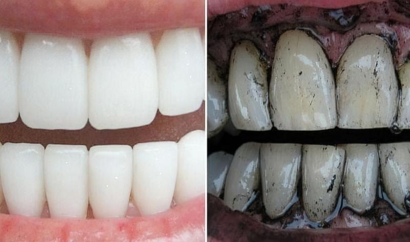 Як відбілити зуби за допомогою соди - кращі рецепти 4